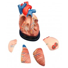 Human heart 3 times enlarged